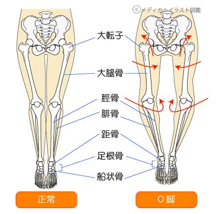 骨盤4.png